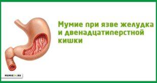 Мумие при язве желудка и двенадцатиперстной кишки